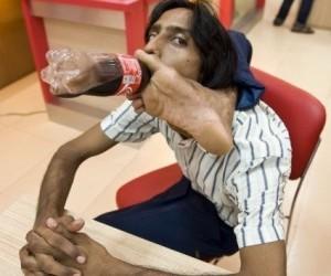 Vijay-Sharma - Il ragazzo di Gomma