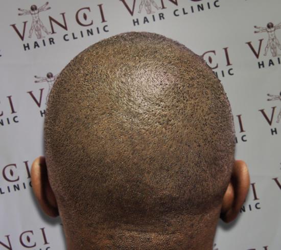 Permanent Bald Head Regrows Hair Naturally